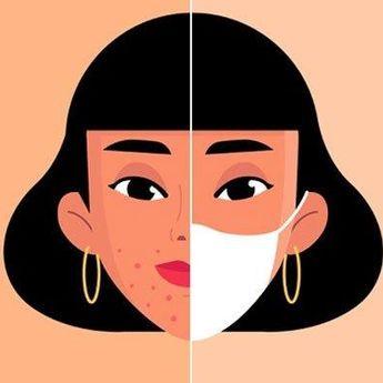 3 Cara Mengatasi Masalah Jerawat Akibat Sering Memakai Masker