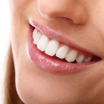 Jangan Dianggap Sepele, 5 Kebiasaan ini Dapat Membuat Gigi Menguning