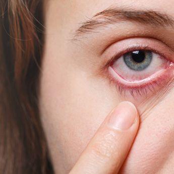 5 Tanda di Mata Bisa Mengetahui Kondisi Kesehatanmu, Cek Sekarang!