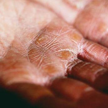 6 Penyebab Kulit Kering, Dokter: Salah Satunya Faktor Genetik!