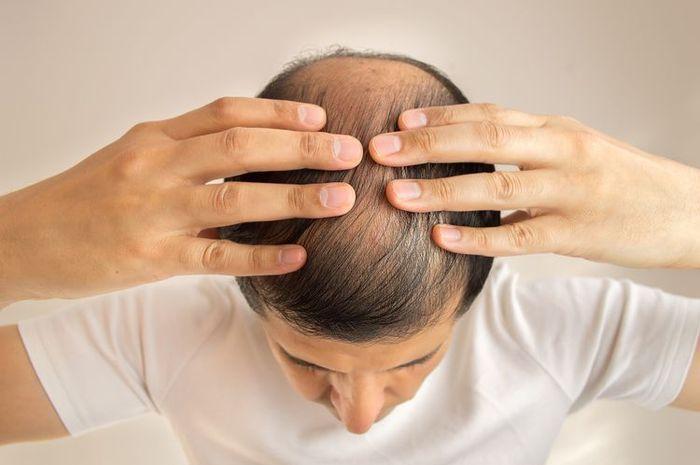 Ilustrasi kepala botak karena rambut rontok